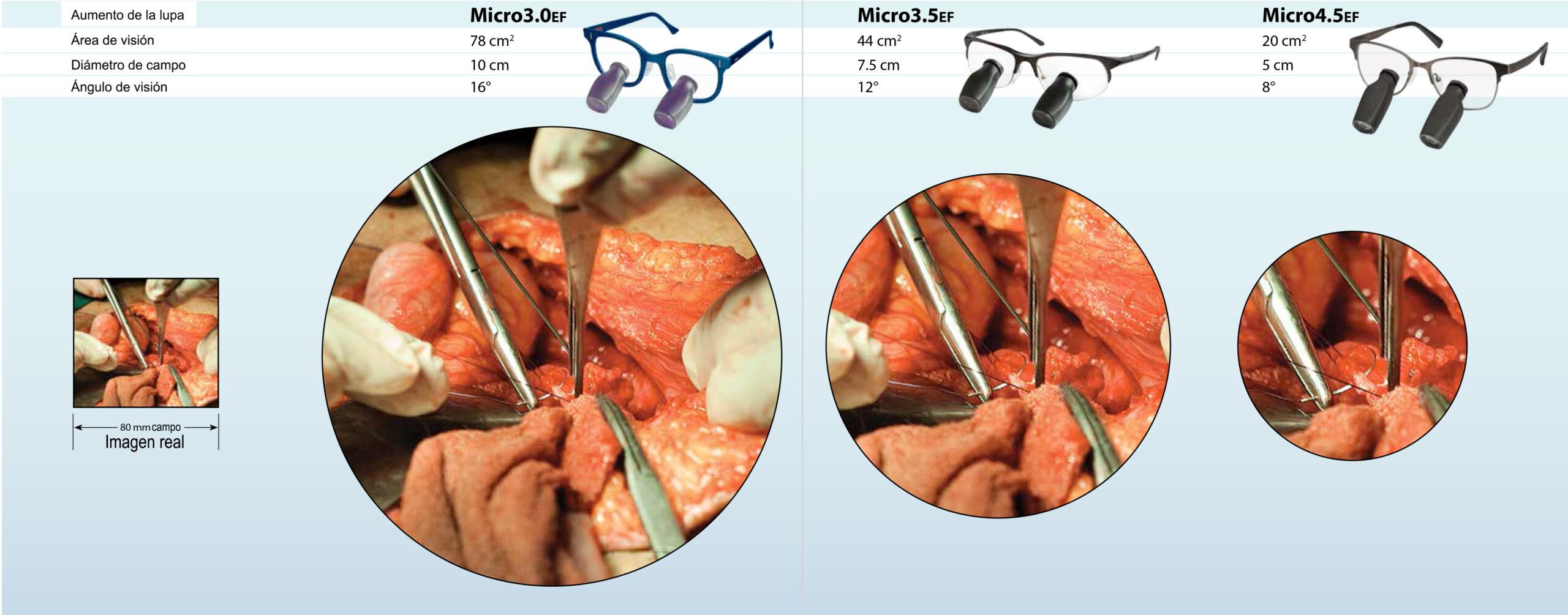 CirujanoSerieMicro_DFV_AVS